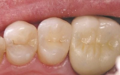 Composite Tooth-Colored Restorations